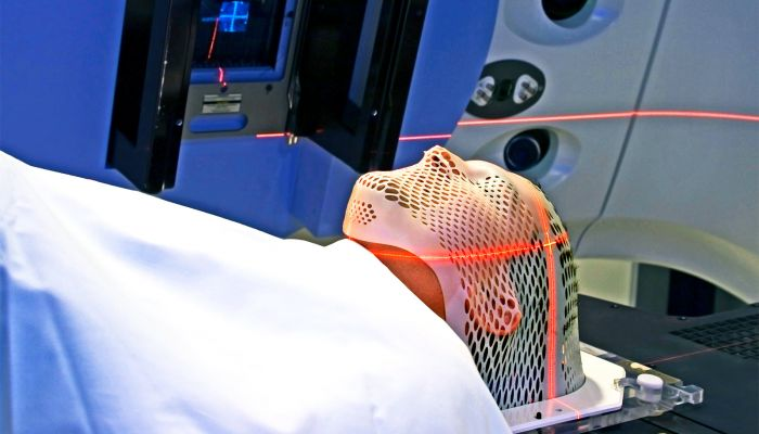 method may predict if radiation will work on tumors